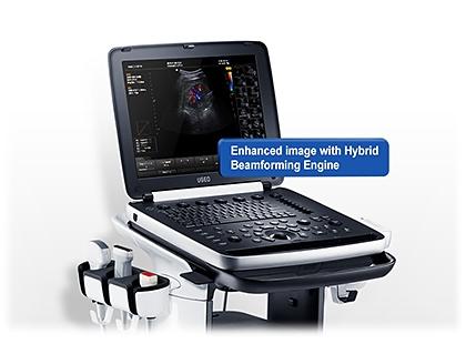 Samsung HM70A ultrahang készülék