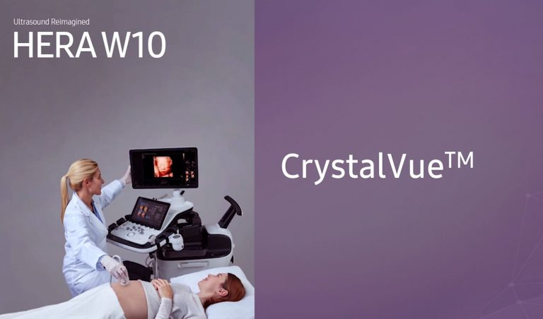 CrystalVue képalkotás